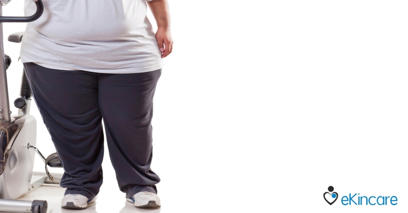 Bariatric Surgery in Obesity