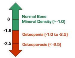 how to detect osteoporosis