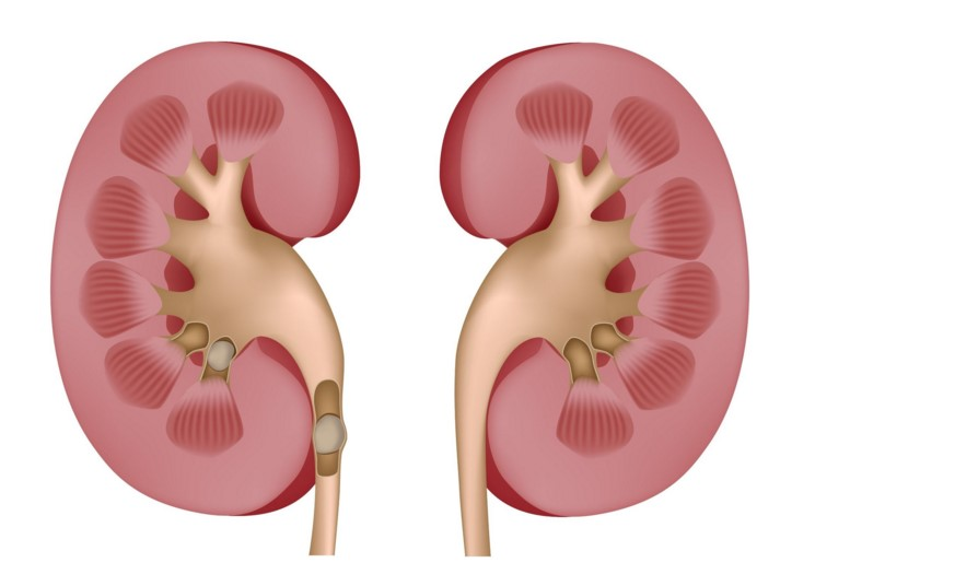 What are kidney stones?