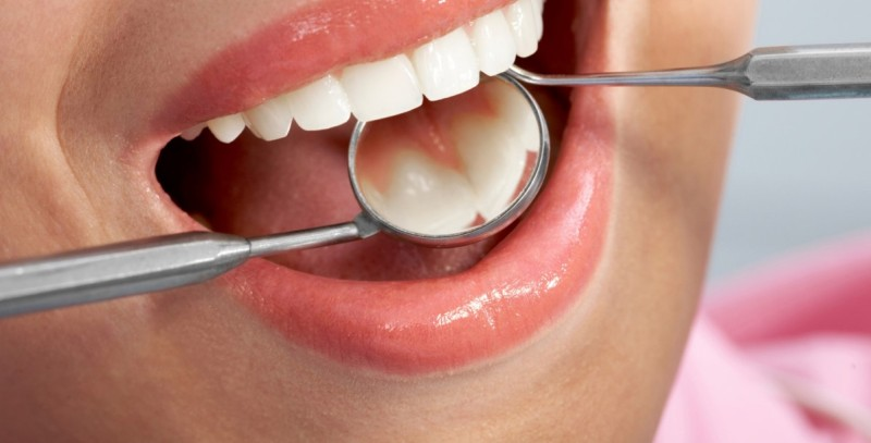 What causes tooth decay?