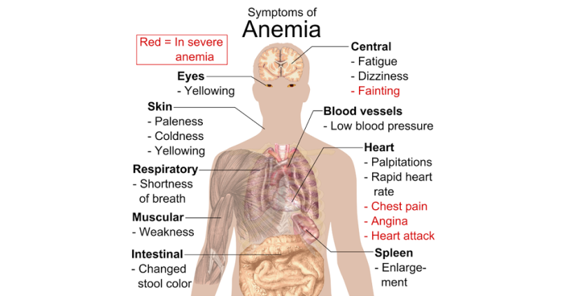 Anemia.png