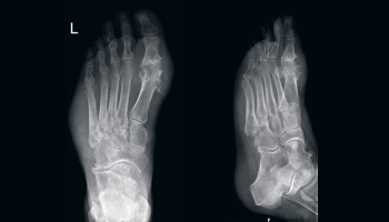 treating gout in feet treat severe gout pain does high uric acid make urine smell