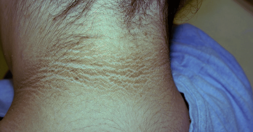 Acanthosis nigricans- Skin pigmentation that needs ...