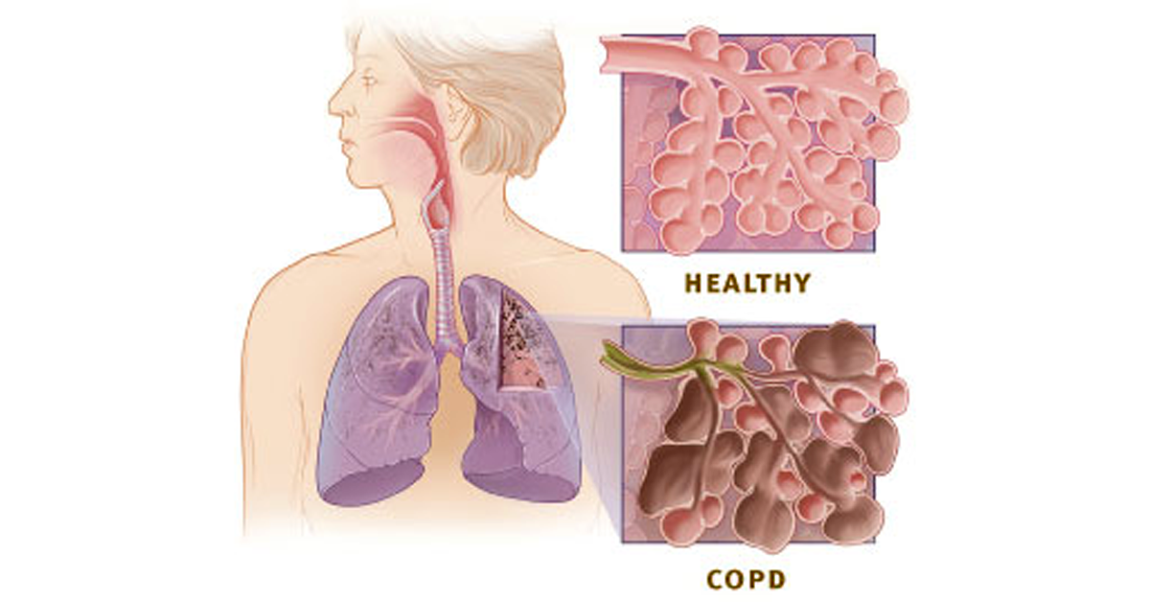 WORLD COPD DAY – What is chronic obstructive pulmonary disease?