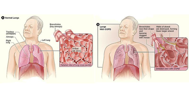 Risk of COPD.png