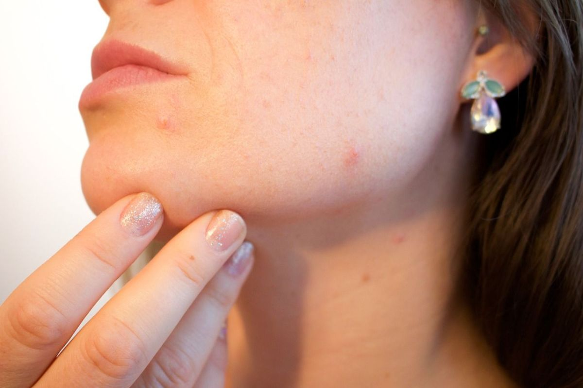 Acne: What andWhy?