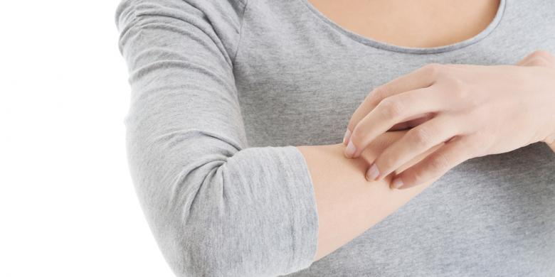 What is Eczema and what do you need to know aboutit