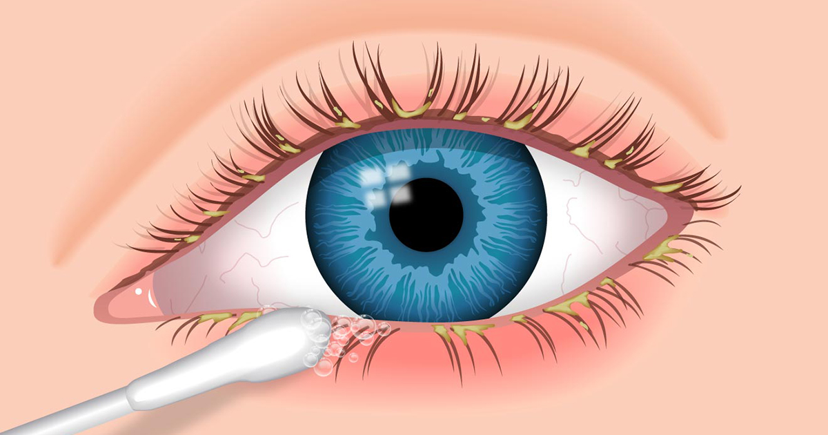 Blepharitis Thinkhealth